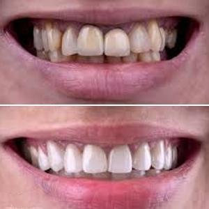 esthetische tandheelkunde almere