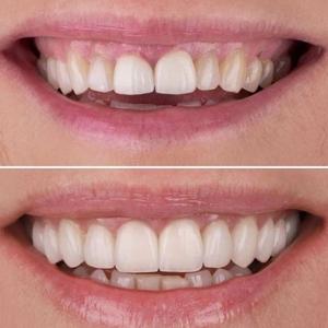 Mooie tanden in Almere