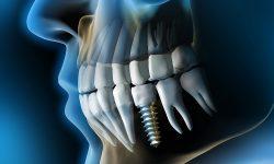 implantologie-almere-implantaat-3
